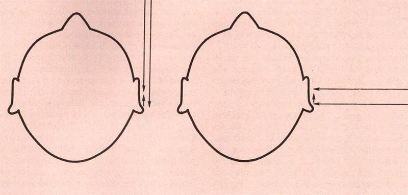 Figura 2 - Sorgenti di azimut differente producono anch'esse riflessioni con ritardi variabili.