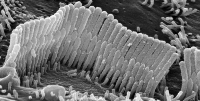 Figura 5 - La foto al microscopio elettronico mostra uno dei 16.000 ricettori con le sue tre file di sensori ciliati che possono variare nel numero da 50 a 100 per ricettore.