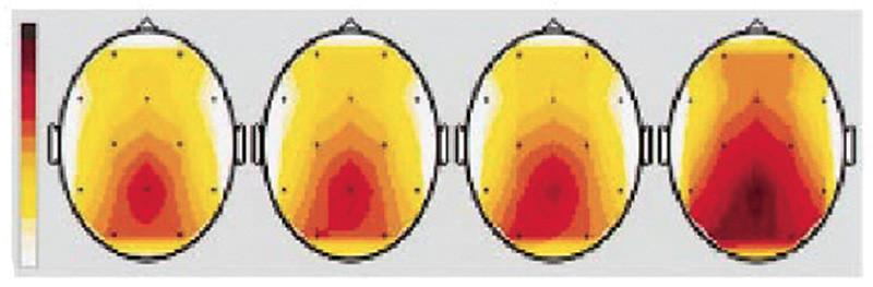 """Figura 7 - L'immagine riassume l'attività della corteccia cerebrale misurata con 12 sensori dell'elettroencefalogramma. La prima immagine si riferisce all'ascolto del rumore di fondo presente nella sala in condizioni di riposo e silenzio; """"LCS"""" (Low Cut Sound) è riferita all'attività delle cellule cerebrali facendo ascoltare solo la parte ultrasonica; in """"HCS"""" (High Cut Sound) notiamo la parte di corteccia interessata dal solo segnale in banda audio; l'ultima, """"FRS"""" (Full Range Sound), evidenzia l'attività cerebrale quando la si stimola con il segnale a banda intera, ultrasuoni compresi (fonte Journal of Neurophysiology)."""