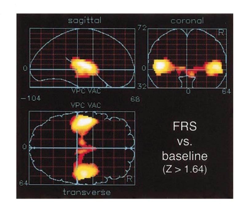 Figura 8 - Immagine della PET quando viene fatto ascoltare il segnale a banda intera, ultrasuoni compresi, dove si nota un interessamento anche del tronco encefalico di sinistra.