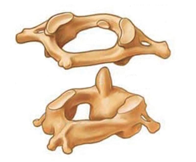 Figura 10 - La struttura ossea alla base del cranio si compone di due parti: la prima vertebra cervicale vera e propria sormontata dall'atlante che ne limita pericolose oscillazioni. In pratica le ossa della testa poggiano su una punta, il dente epistrofeo.